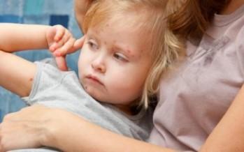 Los pediatras piden la vuelta de la vacuna de la varicela