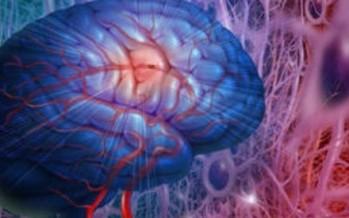 El 75% de los ictus afectan a pacientes mayores de 65 años
