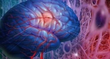 Identifican marcadores asociados al riesgo de sufrir un ictus