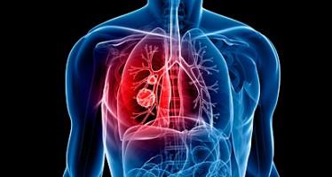 La mortalidad por embolia pulmonar descendió más de un 2% en la última década