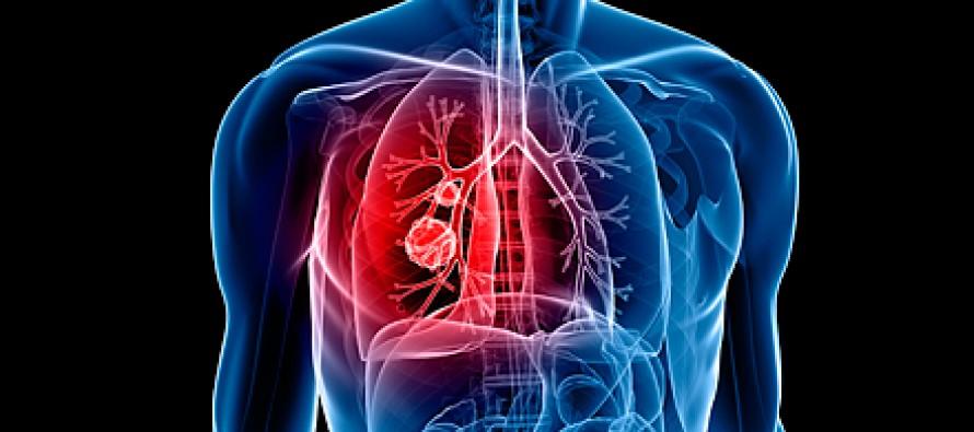 Cáncer de pulmón: El ayuno temporal podría mejorar la eficacia de la inmunoterapia frente a la enfermedad