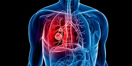 Lungenembolie überlebenschance