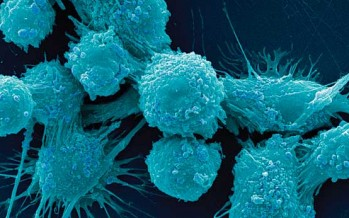 La inmunoterapia es ya una realidad para algunos tumores