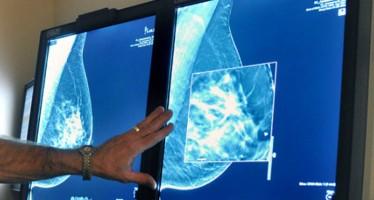 Presentan una técnica pionera en cáncer de mama