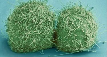 Un fármaco para evitar la metástasis ósea en cáncer de próstata