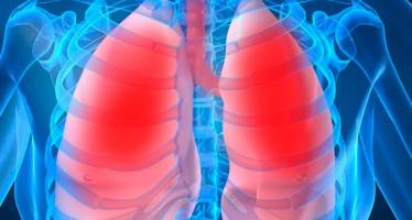 Descubren un fármaco capaz de frenar la progresión de la fibrosis quística