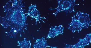 La reducción de algunos aminoácidos ralentiza el avance del cáncer