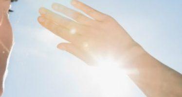 Consejos frente a las quemaduras solares