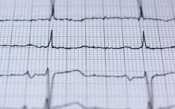 El electrocardiograma en la prevención de la muerte súbita en jóvenes