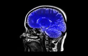 Vivir con narcolepsia