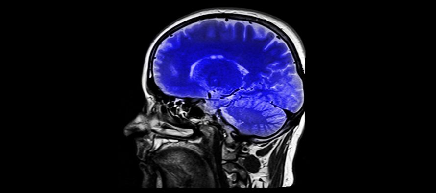 Tumores cerebrales: Cada año se diagnostican en España más de 3.500 mil nuevos casos