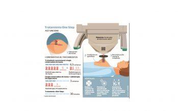 Radioterapia intraoperatoria en cáncer de mama