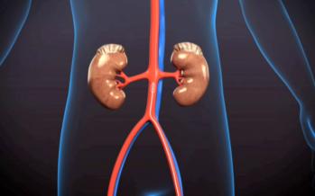 Denervación Renal: tratamiento eficaz para reducir la hipertensión