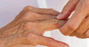 Medicamentos contra artritis y cáncer impulsan a las farmacéuticas