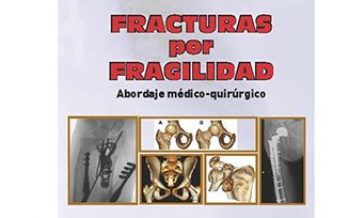 """""""Fracturas por fragilidad"""""""