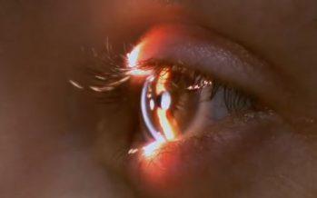 III Curso Básico de Actualización en Cirugía Plástica Ocular
