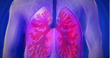 Una nueva terapia reduce el riesgo de metástasis cerebral en algunos cánceres de pulmón