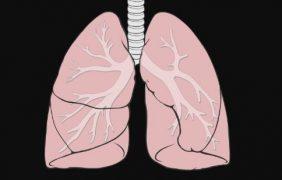 Un nuevo tratamiento basado en quimioterapia e inmunoterapia permite reducir el cáncer de pulmón y evitar la recaída en un 80%