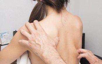 Más de un millón de personas padecen psoriasis en España