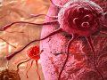 Un estudio afirma que aumenta la supervivencia a los 5 años de los enfermos de cáncer