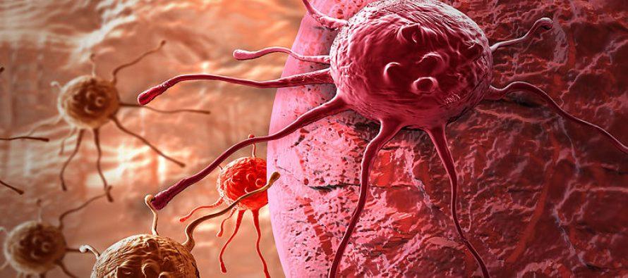Desarrollan un sensor que ayuda a médicos a seleccionar una terapia efectiva contra el cáncer