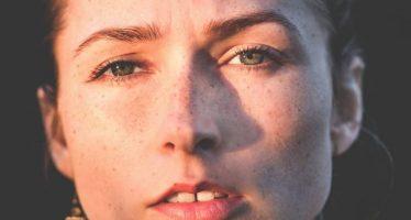 Investigadores avanzan en el desarrollo de una vacuna contra el acné