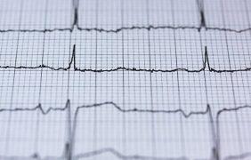 Diseñan un parche inteligente capaz de medir la presión arterial