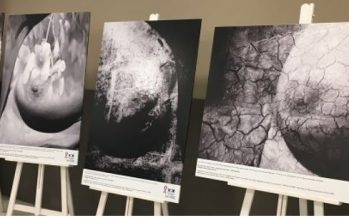 HM Delfos alberga una exposición con motivo del mes de sensibilización del cáncer de mama