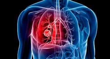 """""""Pon al cáncer de pulmón contra las cuerdas"""", nueva campaña de Bristol-Myers Squibb"""