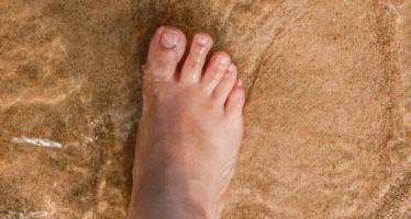 Entre el 15 y el 25% de los diabéticos presentan ulceraciones en el pie a lo largo de su vida