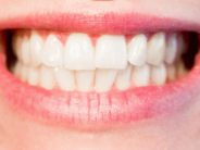 El escáner facial es una herramienta para el diseño digital tridimensional de la sonrisa