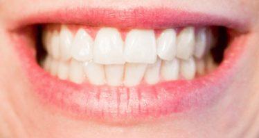 Nanopartículas para remineralizar dientes y huesos