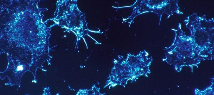 Investigadores identifican un marcador pronóstico en el cáncer de recto basado en el microbioma intestinal
