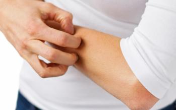 Dermatitis atópica: Investigadores identifican anticuerpos para los hongos 'Malassezia', causantes de la patología