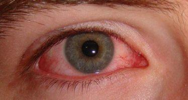 ¿Cuáles son las causas de la conjuntivitis?