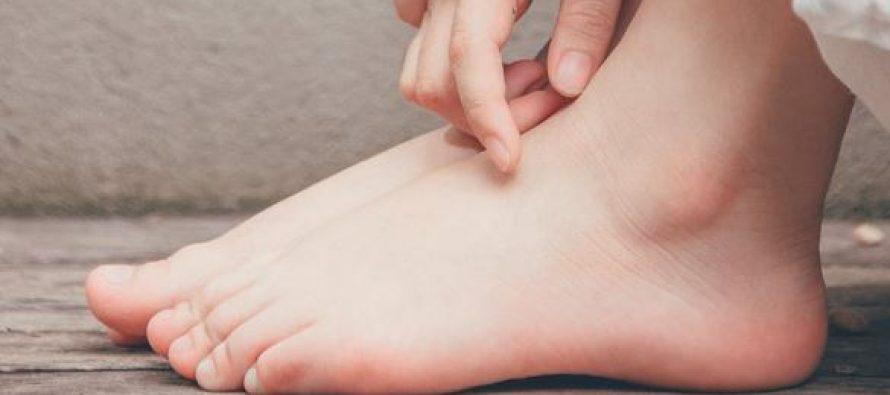 ¿Cuáles son los síntomas de la neuropatía?