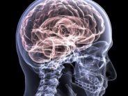 Un estudio refleja que el colesterol alto puede aumentar el riesgo de sufrir alzhéimer