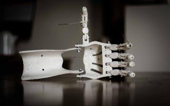 La impresión 3D permite generar modelos específicos para cada paciente