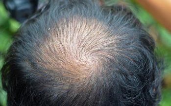 La alopecia difusa provoca una pérdida gradual del cabello