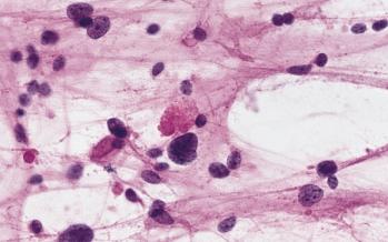 Estos son los principales síntomas del astrocitoma