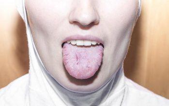¿Qué es la glositis?