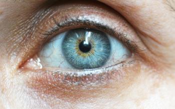 ¿Cuáles son los síntomas de la queratitis?
