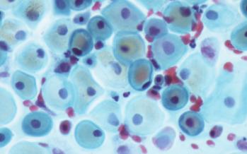 Células de cordón no modificadas duplican la supervivencia en pacientes con coronavirus