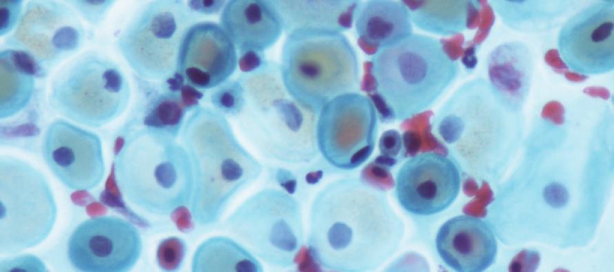 Descubren una posible diana terapéutica para la enfermedad de Kennedy y el cáncer de próstata