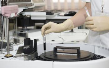 La Covid-19 compromete la eliminación de la hepatitis C