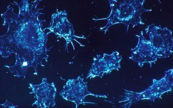 Un tratamiento pionero acorta notablemente los plazos de la radioterapia en el cáncer de próstata