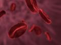 Investigadores descubren que la hemofilia es tres veces más frecuente de lo que se pensaba