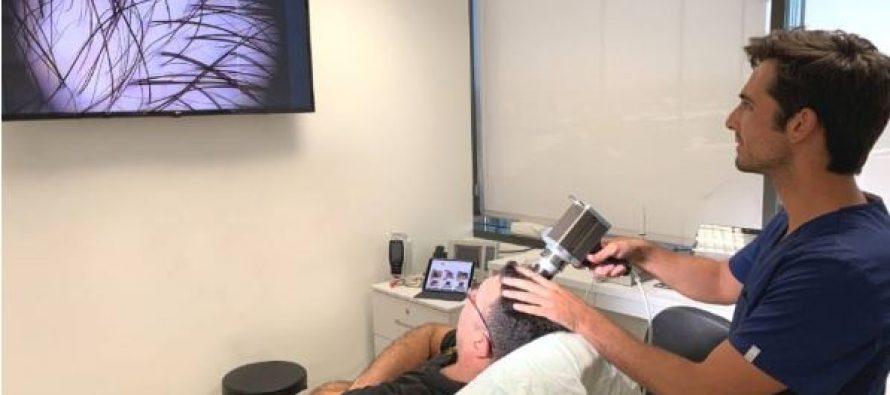 Incorporan un software pionero en Andalucía en el diagnóstico capilar y la planificación para el implante de pelo en Quirónsalud Málaga