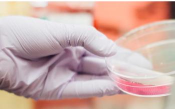 Relacionan la alopecia androgenética y la enfermedad por coronavirus
