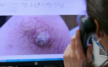Quirónsalud Madrid pone en marcha consultas de teledermatología